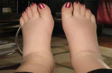 Why Do I Swell Up Dehydration Edema And The Effects Of Purging